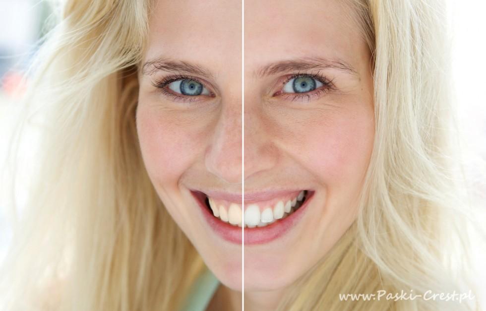Wybielanie zębów - o czym należy pamiętać?