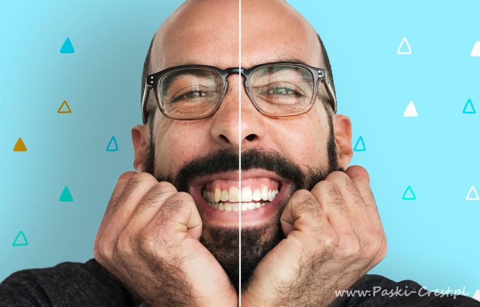 Paski Crest - najlepszy sposób na białe zęby!
