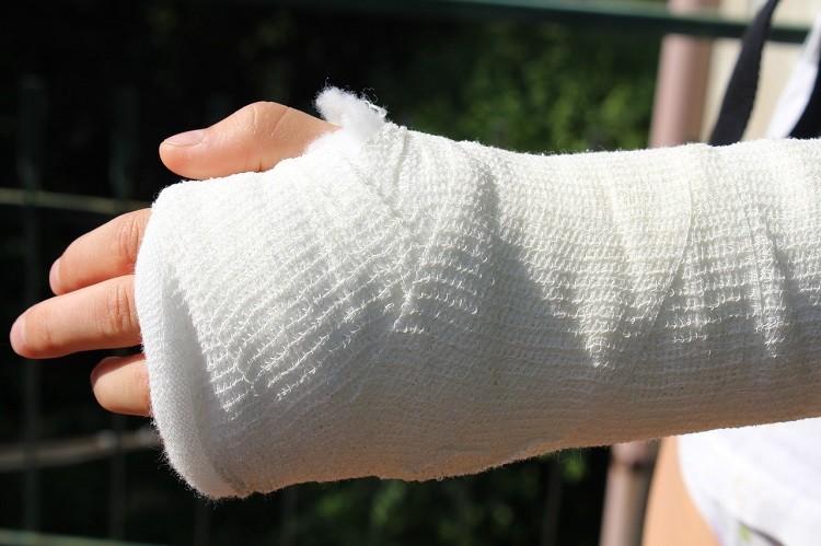 Złamanie kości łódeczkowatej. Jak leczyć.