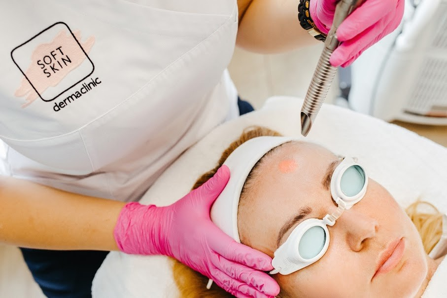 Skuteczne oczyszczanie twarzy za pomocą peelingu medycznego i laserowego